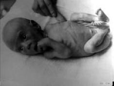 baby-ondervoed